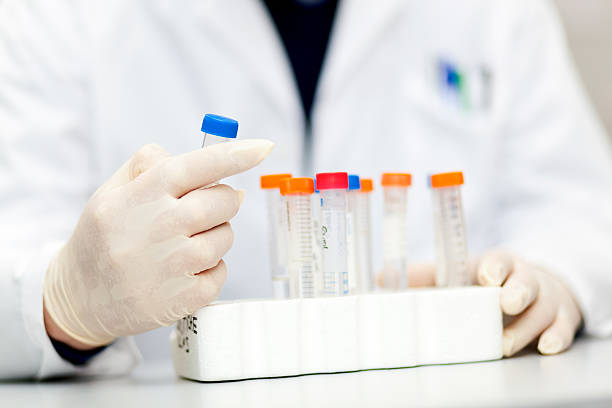 Researcher analyzing blood in a laboratory stock photo