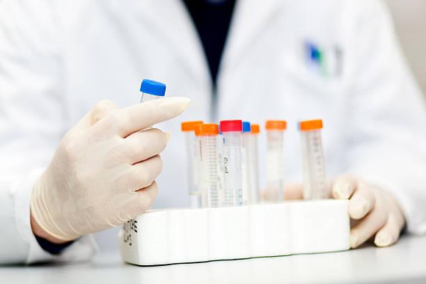 Wissenschaftler analysieren Blut in einem Labor – Foto
