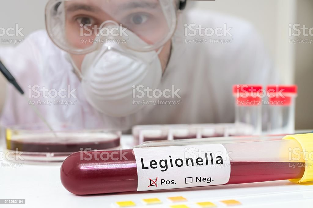 Researcher is analyzing Legionella in test tube with blood. stock photo