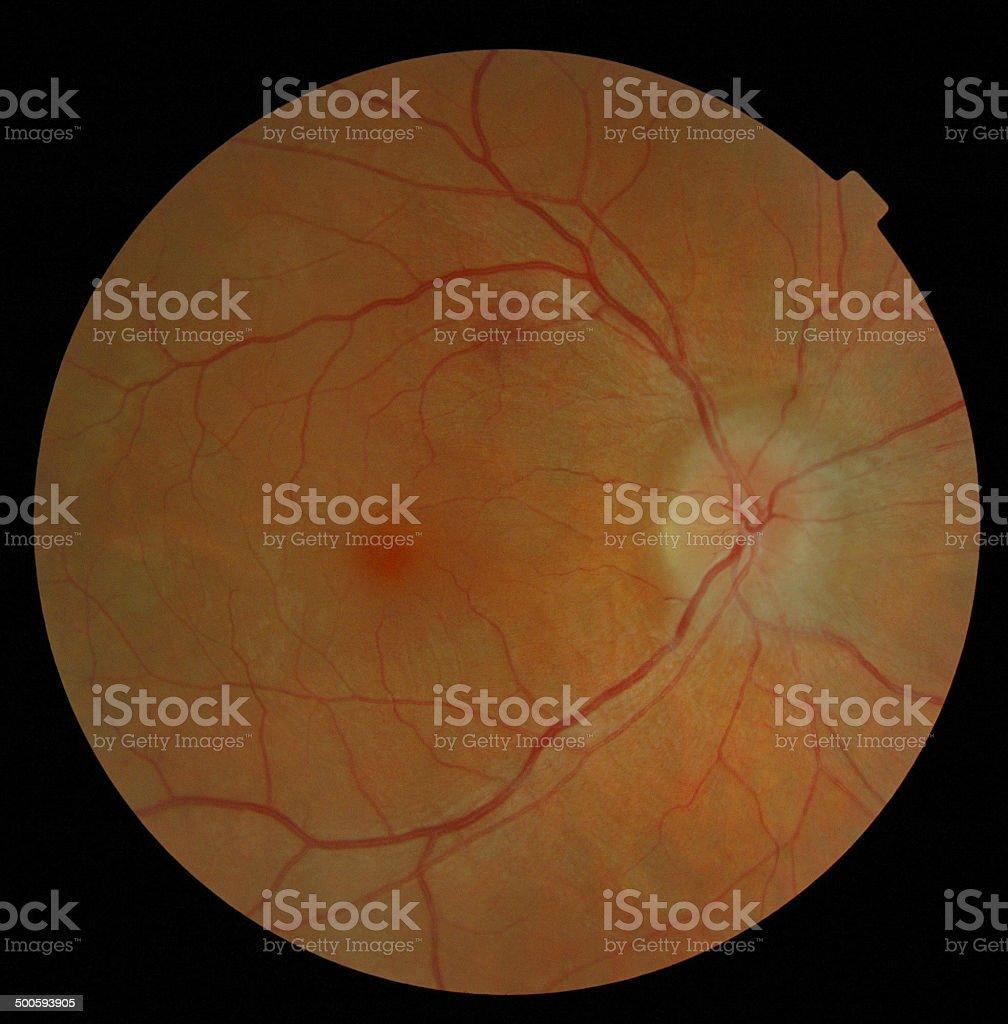 Retina stock photo