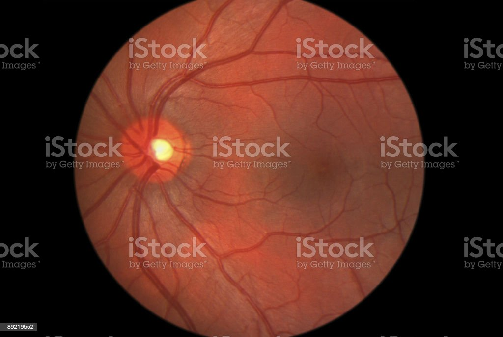 Retina Posterior Pole stock photo