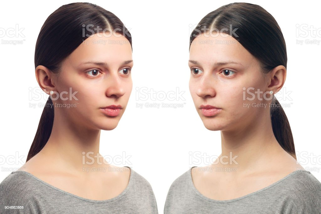 Retouch - face of beautiful young woman with problem skin on her face before and after. Isolated on white stock photo