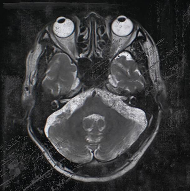 retro-Stil menschliche Gehirn magnetischem resonance Bild (MRI) – Foto