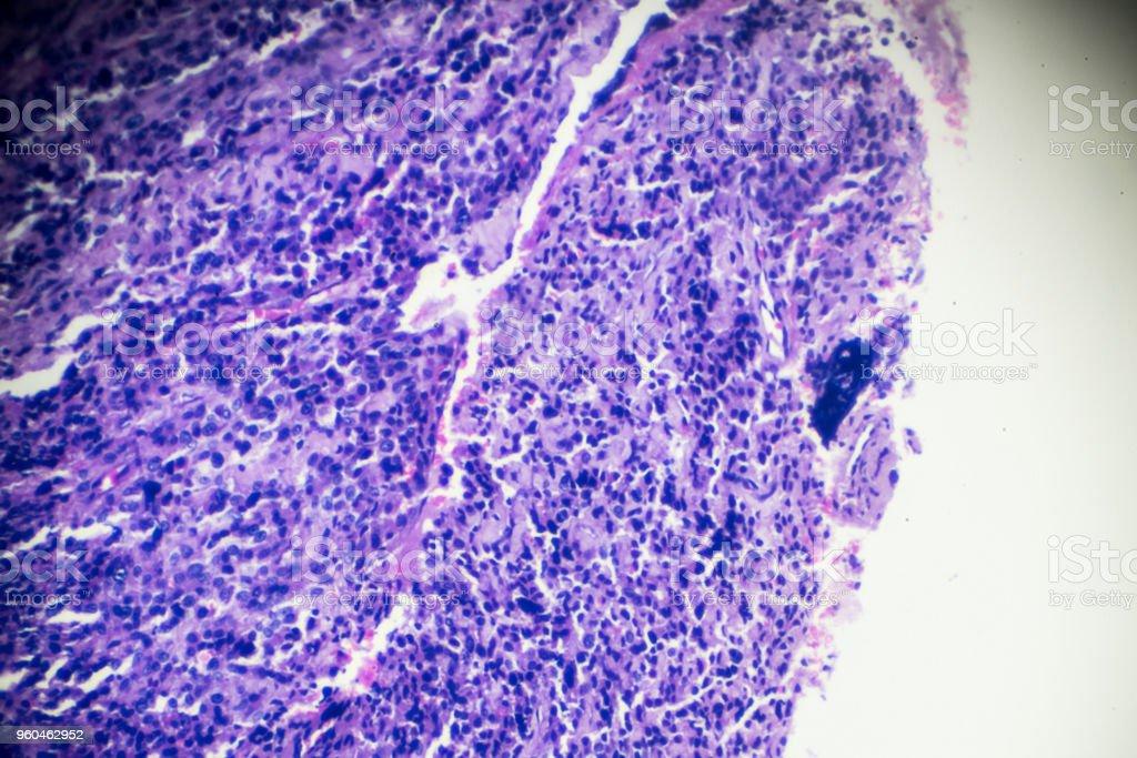 Rhabdomyosarcoma biopsy under microscopy zoom in different range stock photo