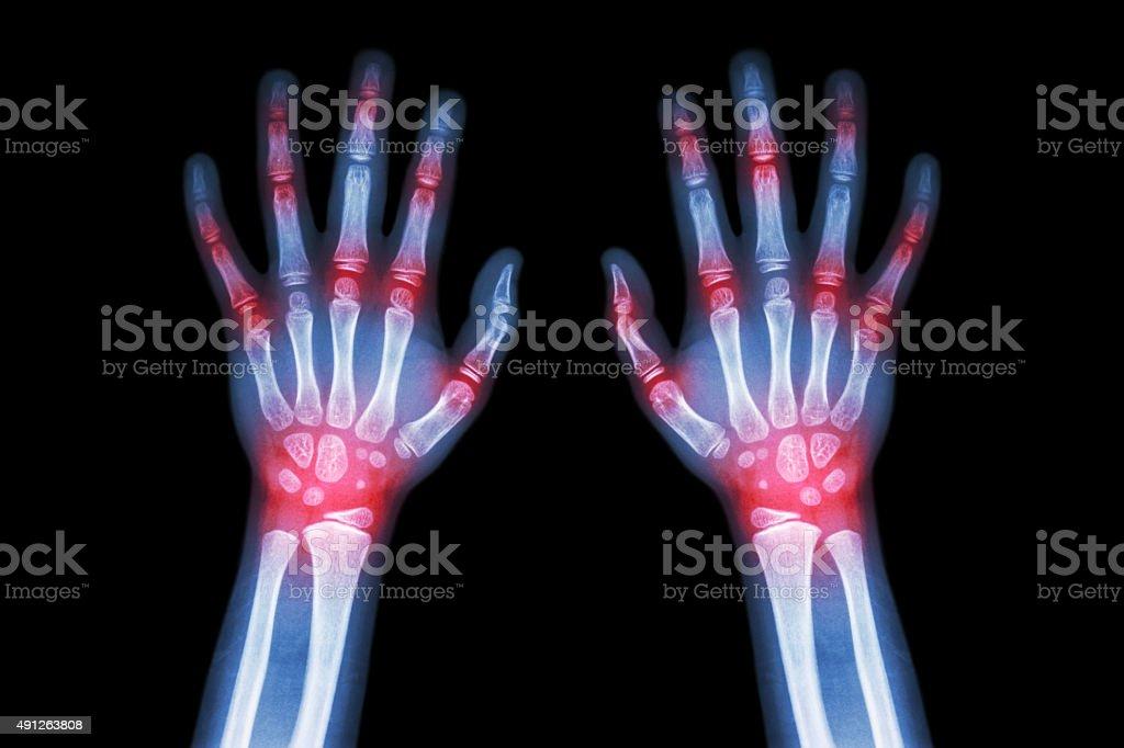 Rheumatoid arthritis , Gout arthritis stock photo