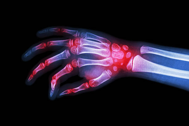 Rheumatoid arthritis , Gouty arthritis Rheumatoid arthritis , Gouty arthritis ( Film x-ray hand of child with arthritis at multiple joint ) gout stock pictures, royalty-free photos & images