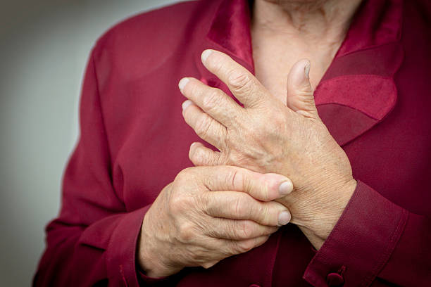 rheumatoid arthritis hands - disfigure stock pictures, royalty-free photos & images