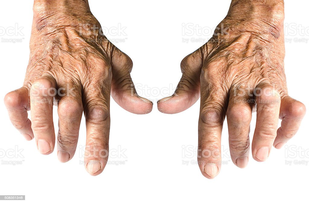 Rheumatoid Arthritis Isolated on White Background stock photo