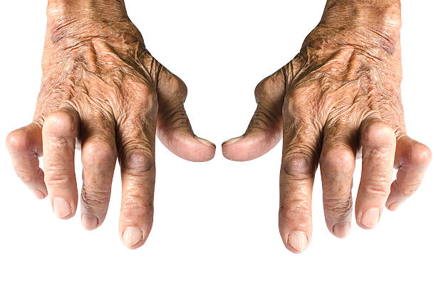 Rheumatoid Arthritis Isolated on White Background Old Woman's Hands Deformed From Rheumatoid Arthritis Isolated on White Background rheumatism stock pictures, royalty-free photos & images