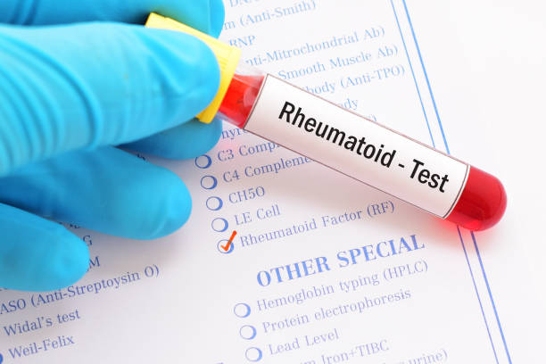 Rheumatoid factor (RF) test Blood sample with requisition form for rheumatoid factor (RF) test rheumatism stock pictures, royalty-free photos & images