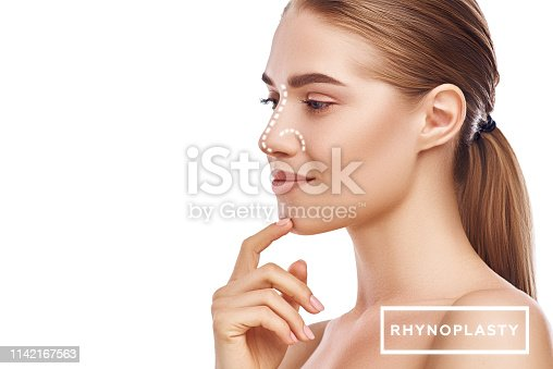 Rhinoplasty - nose surgery. Side view of attractive young woman with perfect skin and dotted lines on her nose isolated on white background. Plastic surgery concept. Nose deformations