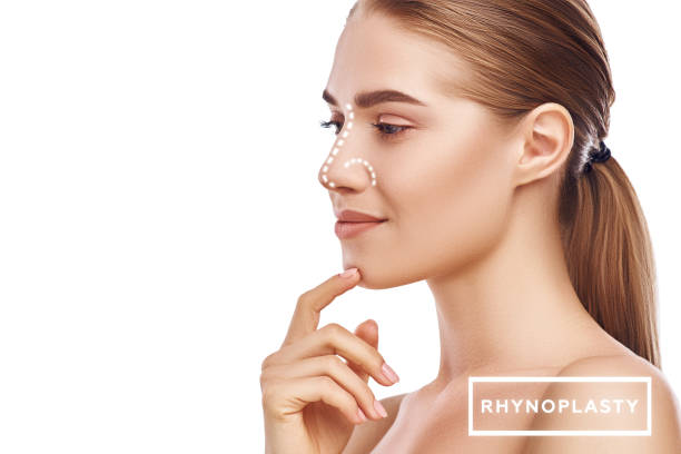 rhinoplasty - nose surgery. side view of attractive young woman with perfect skin and dotted lines on her nose isolated on white background. plastic surgery concept - naso foto e immagini stock