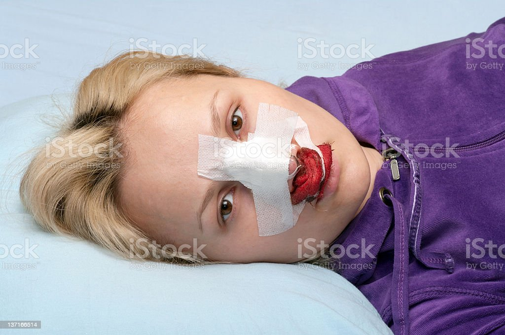 Rhinoplasty. stock photo