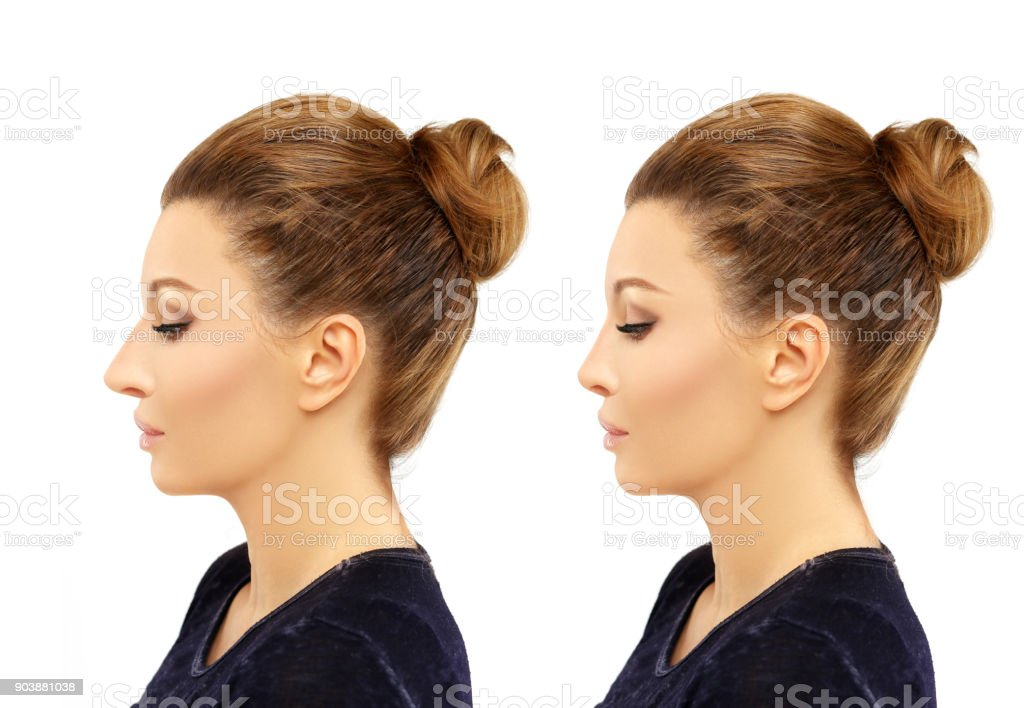 Rhinoplasty.Before and after stock photo