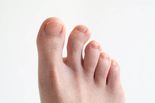 right caucasian male foot top view with bent crooked toe against bright white background close up - disfigure stock pictures, royalty-free photos & images