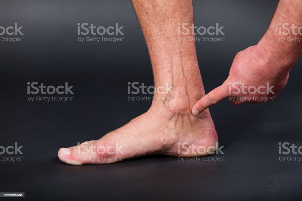 Right foot with drawing of medial malleolus and ligamentum deltoideum stock photo