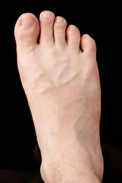 Der rechte Mann mit bloßem Fuß – Foto