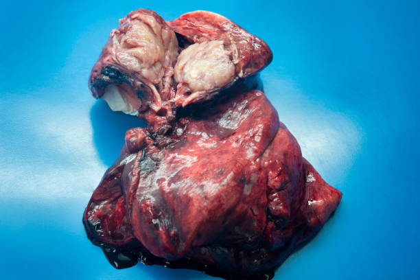 Right middle lobe and right lower lobe carcinoide lung tumor Right middle lobe and right lower lobe carcinoid lung tumor in a young female patient  after surgery. intercostal space stock pictures, royalty-free photos & images