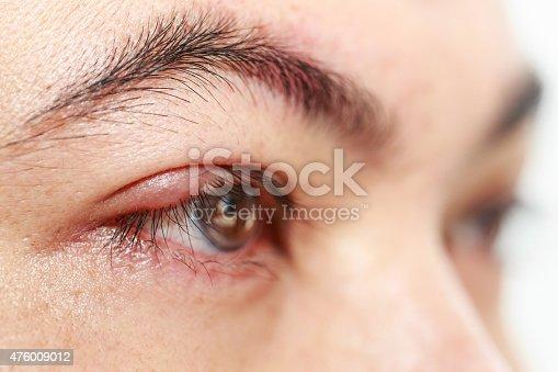istock Right upper eye lid abscess
