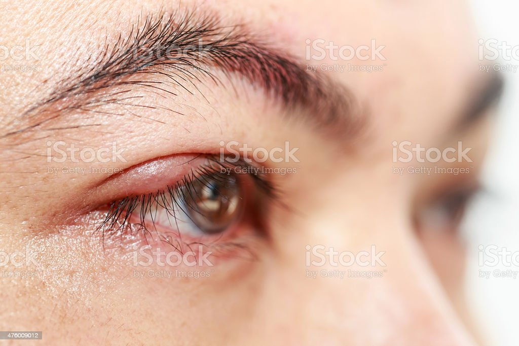 Right upper eye lid abscess 'stye or hordeolum' stock photo