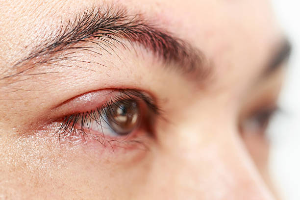 """right upper eye lid abscess """"stye or hordeolum"""" - eyelid stock pictures, royalty-free photos & images"""
