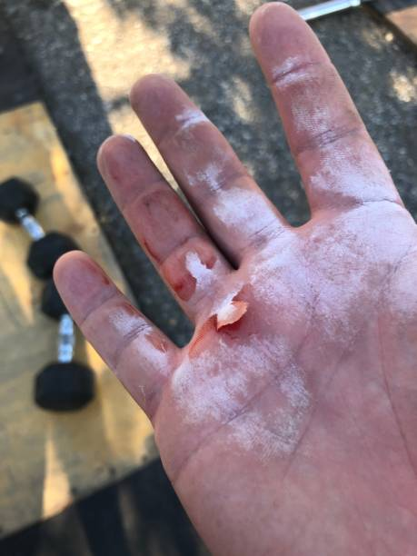 Ripped calluses on chalky hands from a workout stock photo