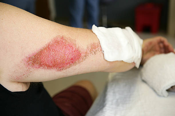 road rash - open wounds stock photos and pictures