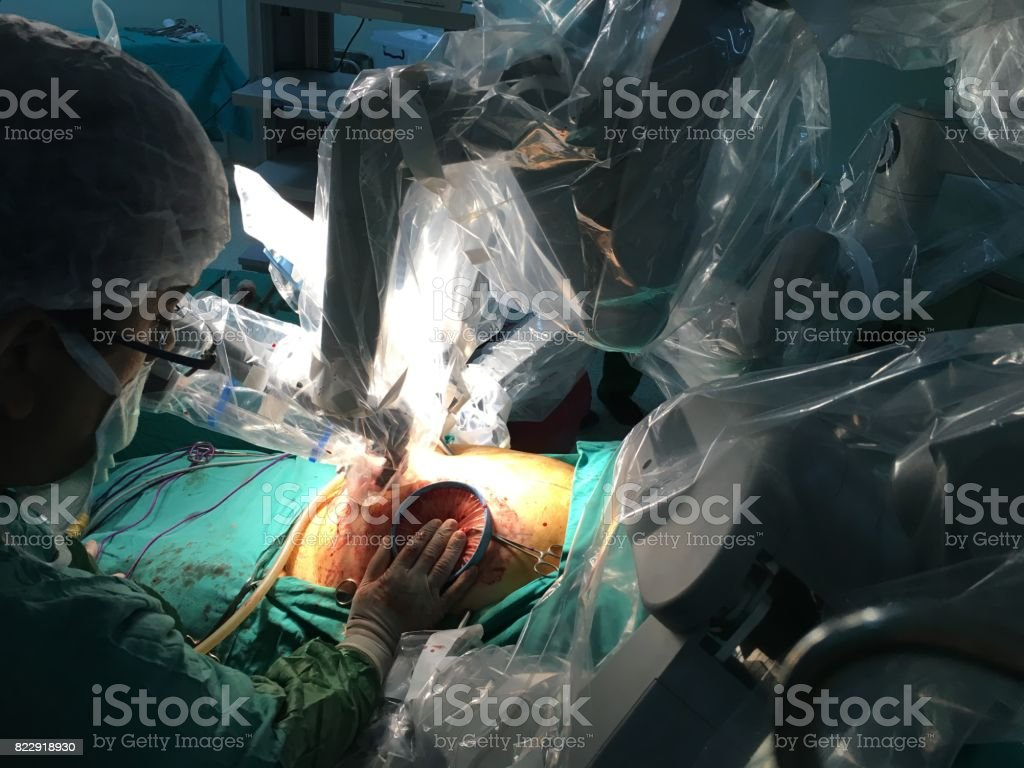 Robotic surgery. stock photo