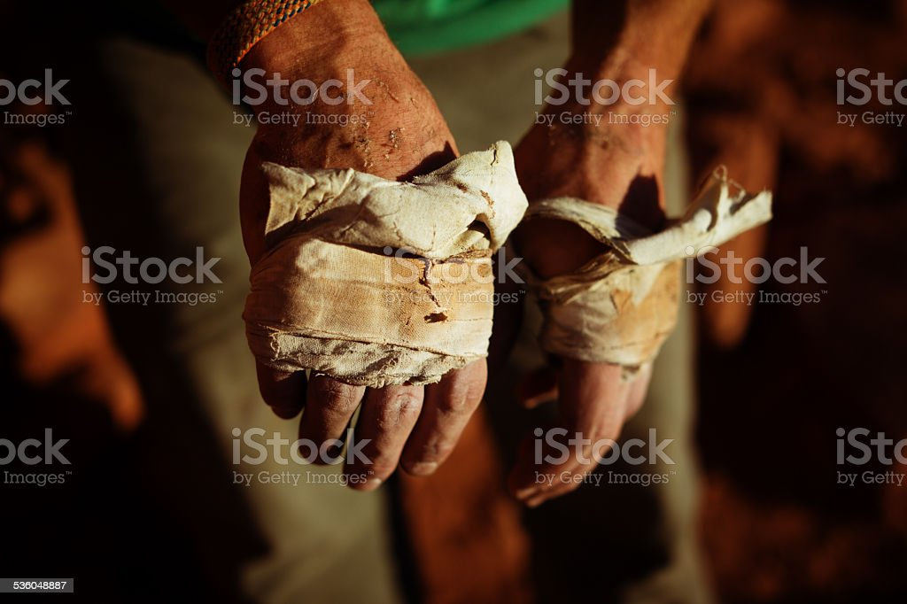 Rock climber's hands with climbing tape stock photo