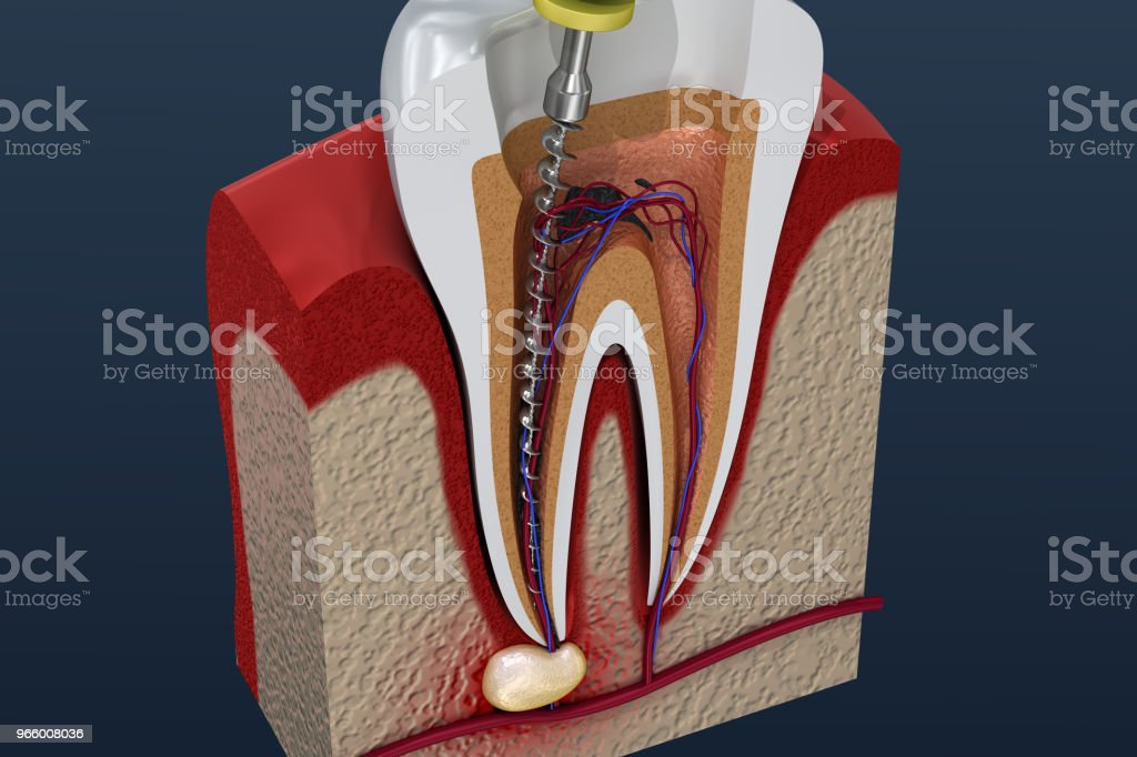 Wurzelkanal Behandlungsprozess. 3D illustration - Lizenzfrei Abszess Stock-Foto