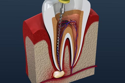 Rotfyllning Behandlingsprocess 3d Illustration-foton och fler bilder på Anatomi