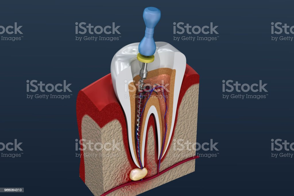 Rotfyllning behandlingsprocess. 3D illustration - Royaltyfri Anatomi Bildbanksbilder