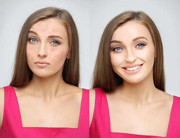 rosacea.girl  with problem and clear skin. - retouched image stock photos and pictures