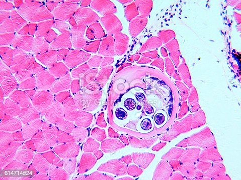 Roundworm Trichina spiralis formely called Trichinella spiralis, nematode larval cyst in muscle tissue, large spherical. Light micrograph, magnification X50
