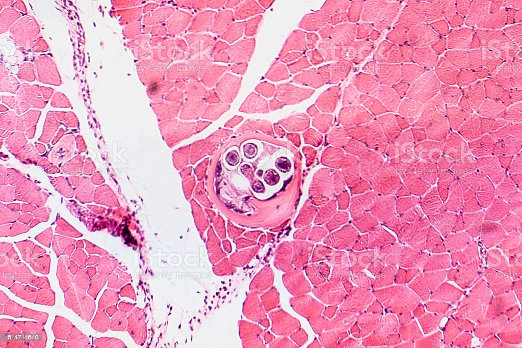 Roundworm Trichina spiralis stock photo