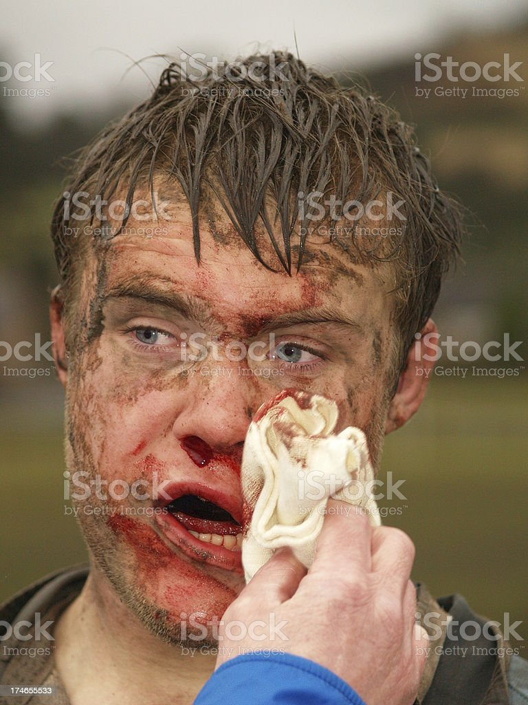 Rugby injury stock photo