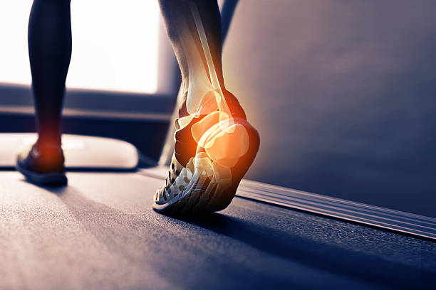 run off your heels - inflammation bildbanksfoton och bilder