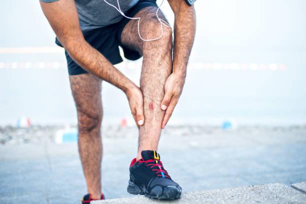 läufer mit verletzten unterschenkel - wadenkrämpfe was tun stock-fotos und bilder