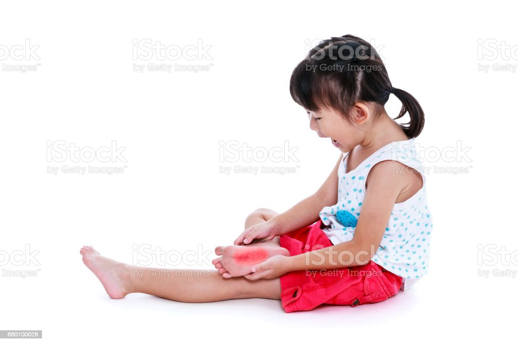 Sad asian child injured at sole. Isolated on white background. stock photo