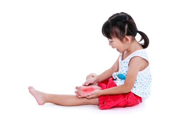 Sad asian child injured at sole. Isolated on white background. stock photo