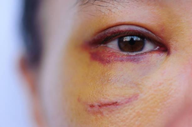 Trauriges Auge eines Opfers häuslicher Gewalt – Foto