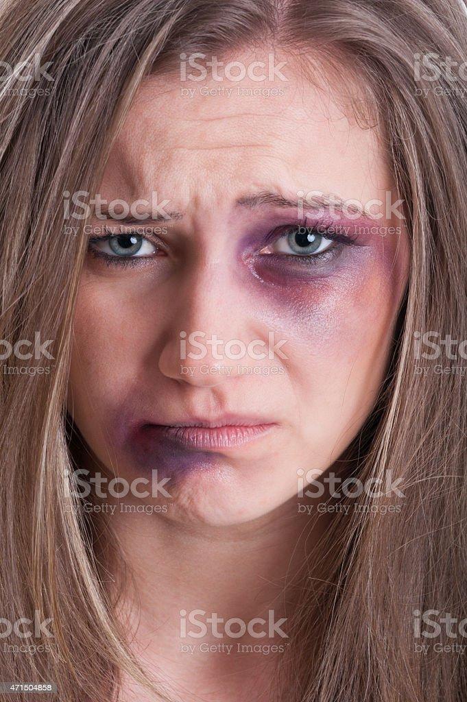 Trauriges Gesicht Eines Verletzten Fast Weint Frau Stock Fotografie