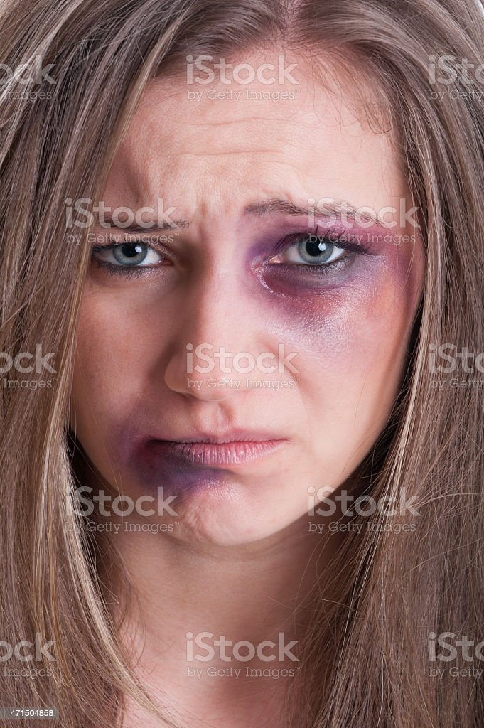 Sad face almost crying of an injured woman stock photo
