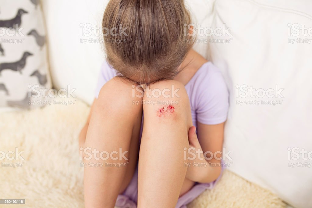 Sad Girl with Wounded Knee. stock photo