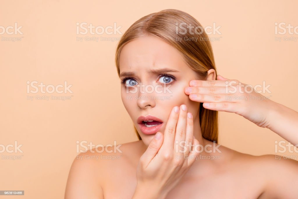 Sad, upset, frustrated, disappointed, nude, natural girl touching cheek with fingers having dry oiled skin, minerals, vitamins, detox, moisturizing, hydration concept isolated on beige background - Foto stock royalty-free di Accudire