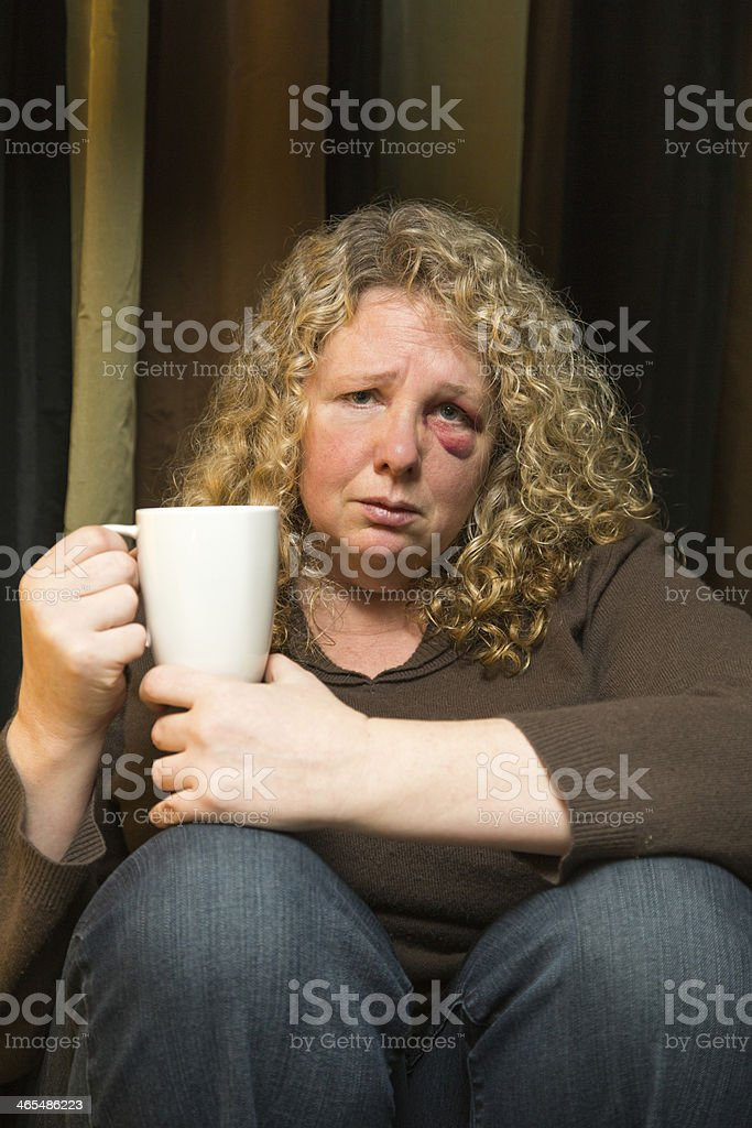 Sad woman with black eye stock photo