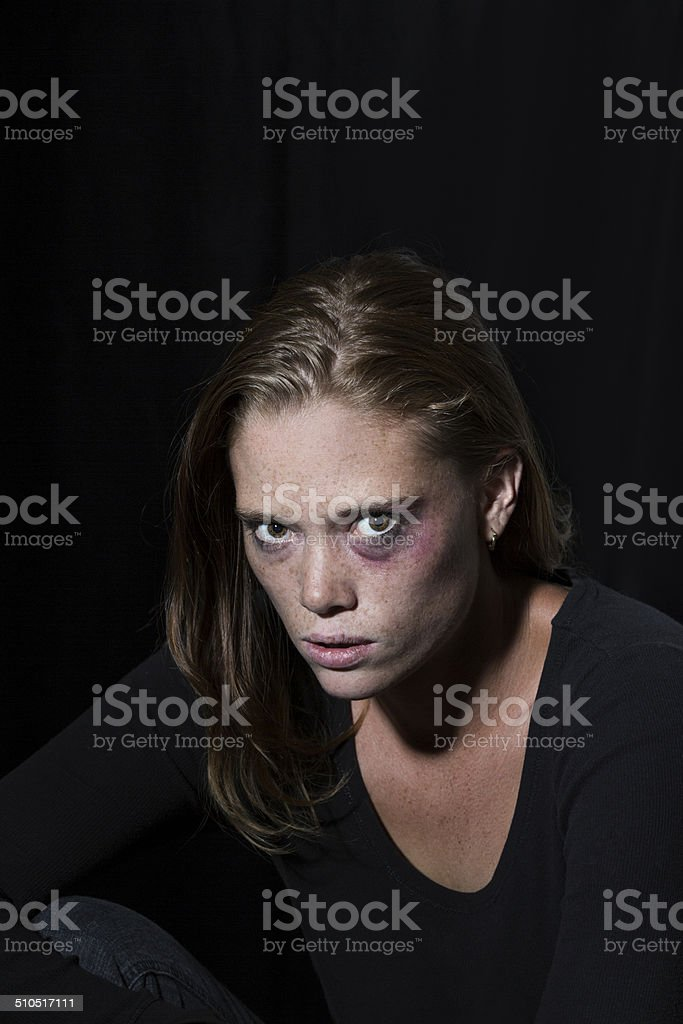 Sad young woman with smeared makeup and black eye stock photo
