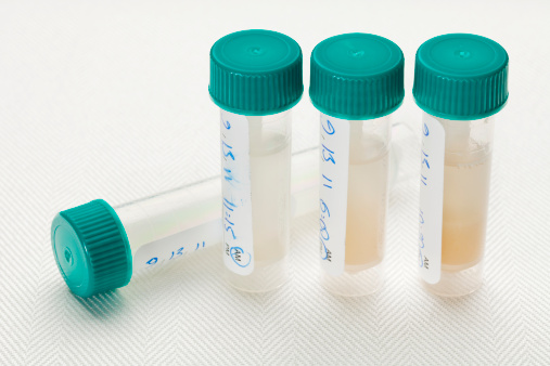 Saliva Samples For Laboratory Test Stock Photo - Download Image Now