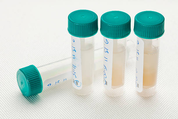 saliva samples for laboratory test - human saliva stock pictures, royalty-free photos & images