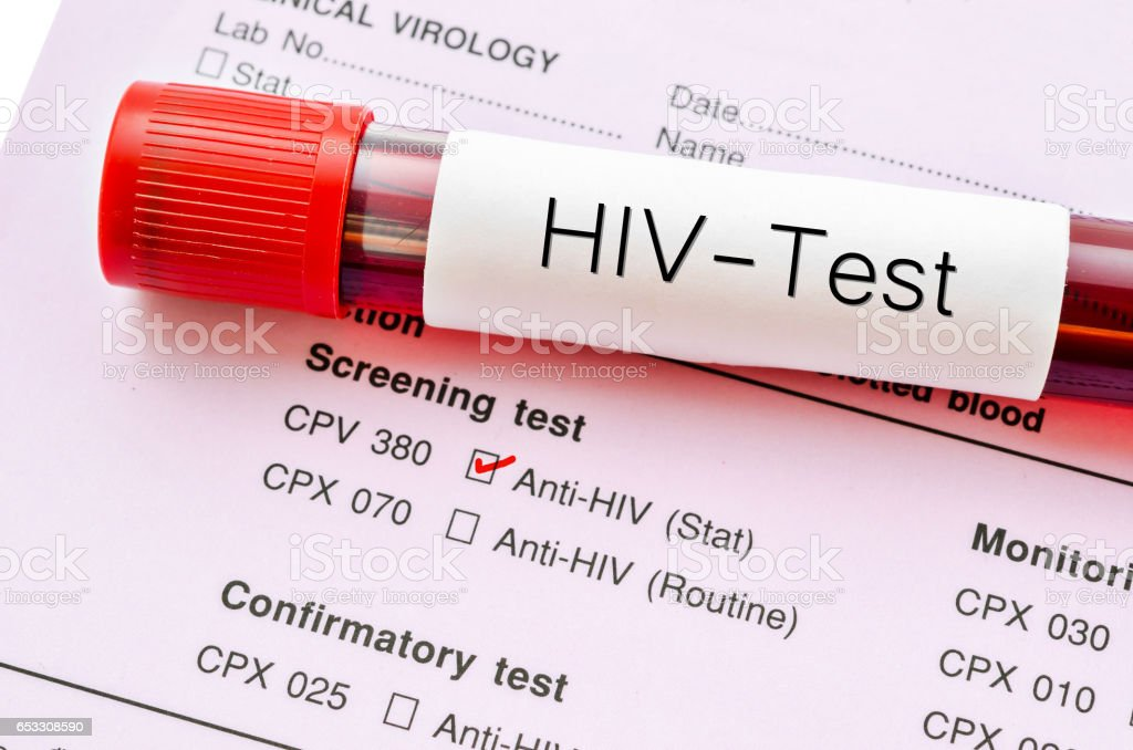 Sample blood collection tube with HIV test label stock photo